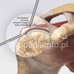 Wapniejące zapalenie ścięgien stożka rotatorów - artroskopowe usuwanie zwapnień