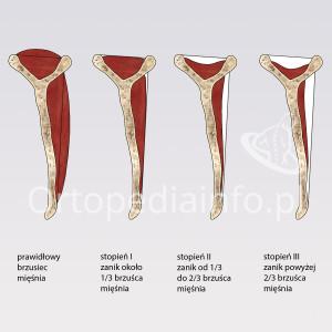 Uszkodzenie stożka rotatorów - stopnie zaniku brzuśca mięśnia