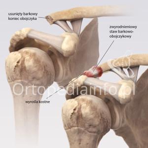 Zmiany zwyrodnieniowe w stawie barkowo-obojczykowym - leczenie operacyjne