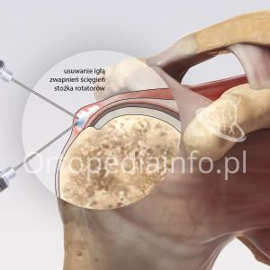 Wapniejące zapalenie ścięgien stożka rotatorów - zabieg usuwania zwapnień igłą