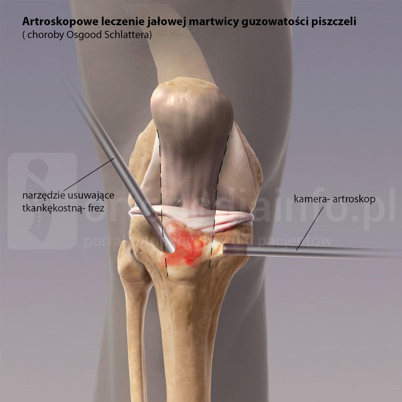 jałowa martwica guzowatości piszczeli (choroba Osgooda-Schlattera) - leczenie artroskopia