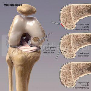jałowa martwica chrzęstno-kostna - mikrozłamania