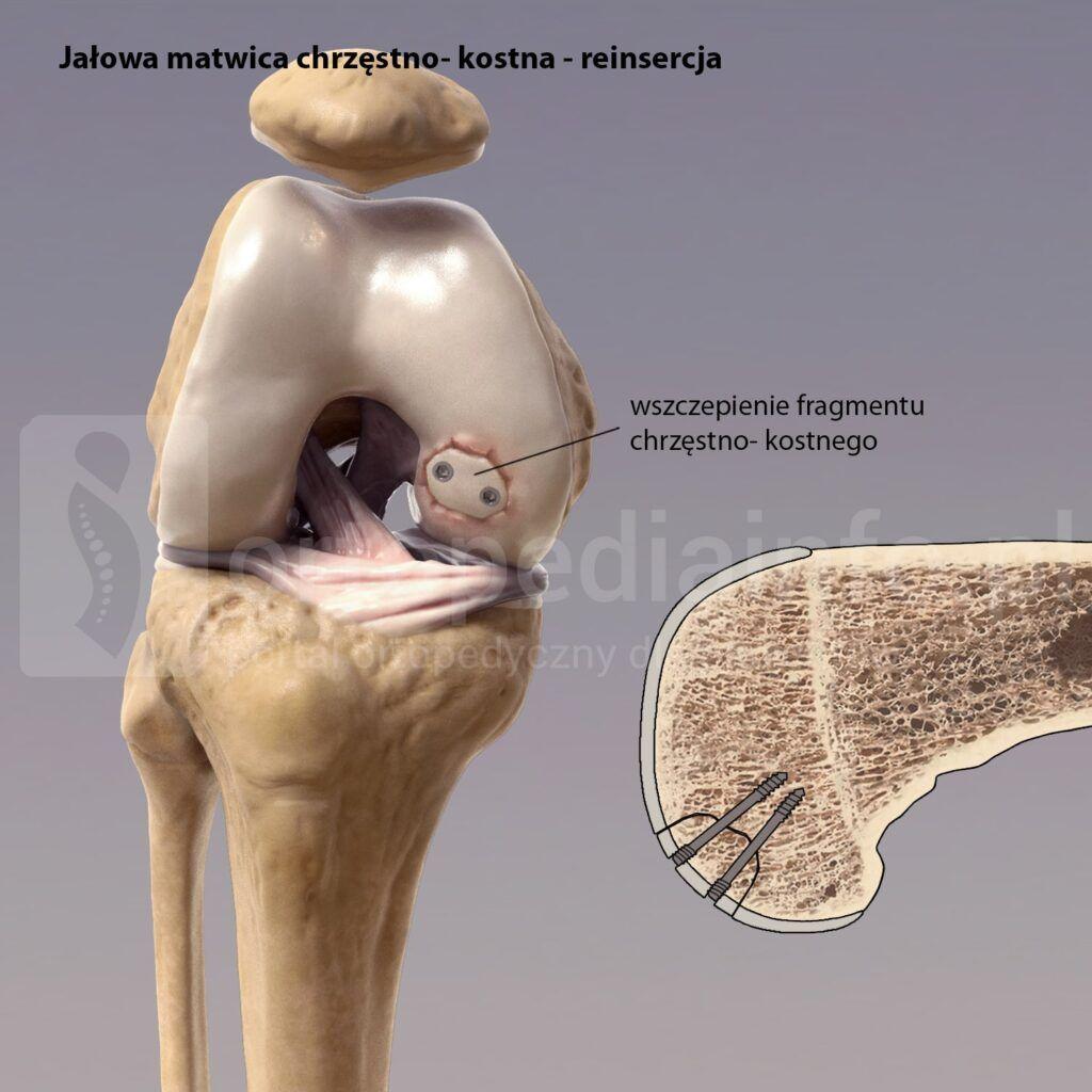 jałowa martwica chrzęstno-kostna - reinsercja