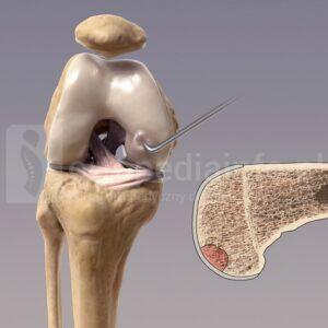 jałowa martwica chrzęstno-kostna - obrzęk szpiku