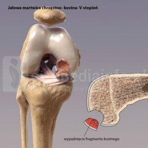 jałowa martwica chrzęstno-kostna - wypadnięty fragment chrzęstno-kostny