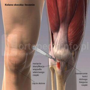 kolano skoczka leczenie operacyjne