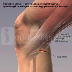 Rekonstrukcja więzadła krzyżowego przedniego ACL-pobieranie ścięgna do przeszczepu