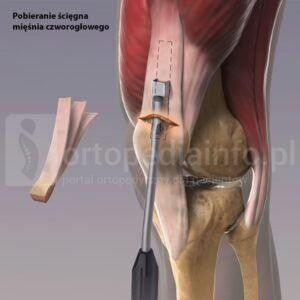 rekonstrukcja więzadła krzyżowego przedniego-ścięgno głowy prostej mięśnia czworogłowego uda