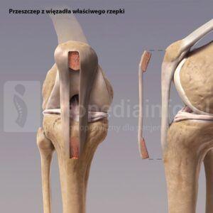 Rekonstrukcja więzadła krzyżowego przedniego ACL - przeszczep z więzadła właściwego rzepki